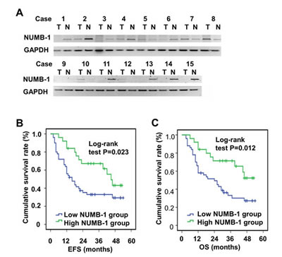 Fig.1:The mRNA level of NUMB-1 is decreased in ESCC tissues and correlates with poor prognosis in patients.