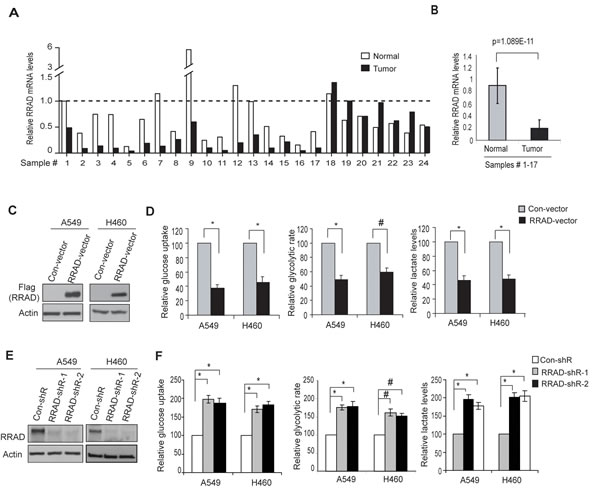 RRAD negatively regulates glucose uptake, the glycolytic rate and lactate production in human lung cancer cells.