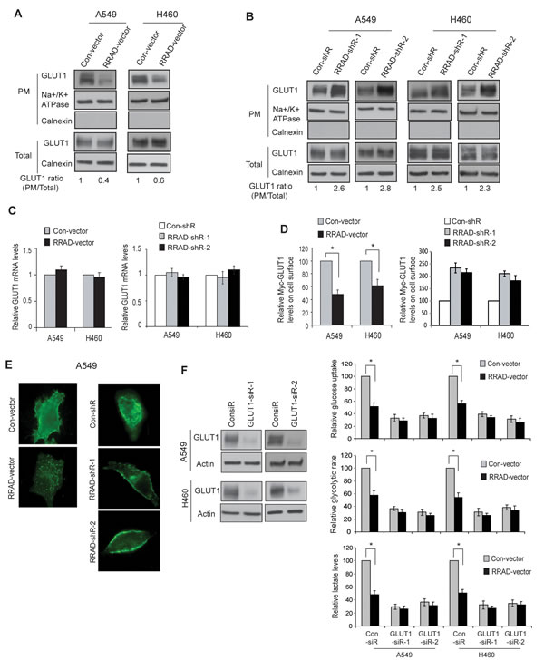 RRAD negatively regulates GLUT1 translocation to the plasma membrane (PM) in cells.