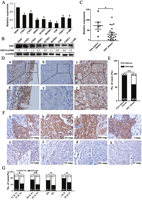 Klf4 was downregulated in NPC cell lines and clinical specimens and Klf4 downregulation was associated with advanced TNM stage of NPC.