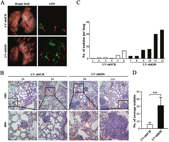 RNAi-mediated silencing of endogenous Klf4 promoted the metastasis of NPC cells in vivo.