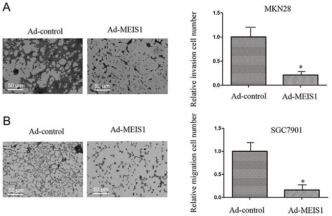 MEIS1 inhibits metastasis of high aggressive GC cells MKN28.