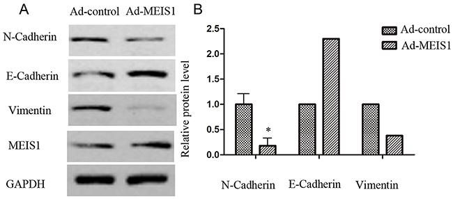 MEIS1 inhibits EMT process.