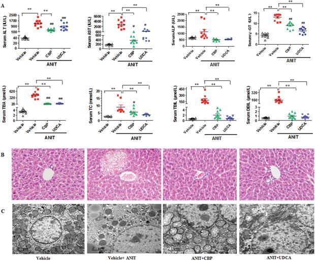 CBP ameliorates ANIT-induced intrahepatic cholestasis in mice.