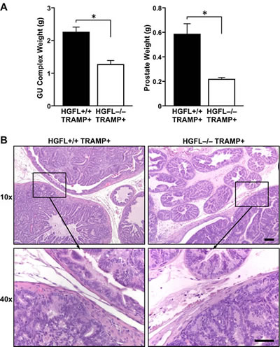 HGFL deficient TRAMP+ mice have reduced GU complex and prostate tumor size.