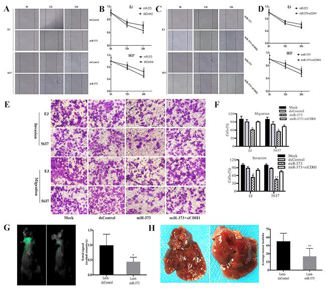 MiR-373 suppresses BCa cells migration and invasion.