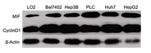 MIF and cyclin D1 expression is upregulated in HCC cell lines.