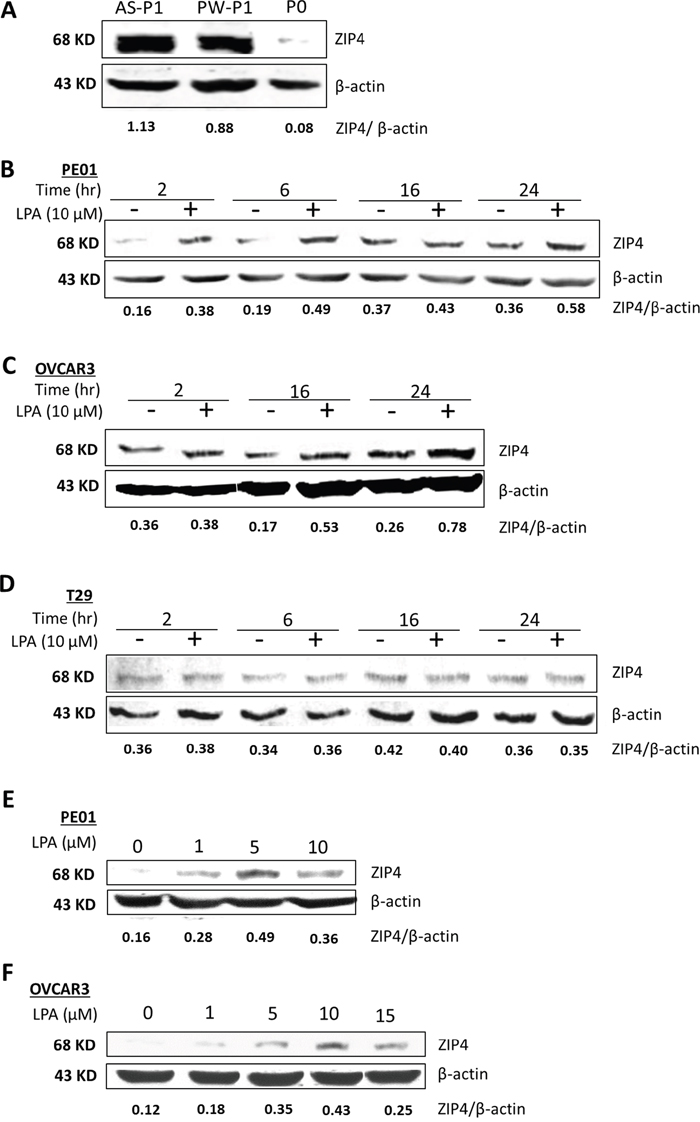 LPA-dose and -time dependently up-regulated ZIP4 via PPARγ in EOC cells.