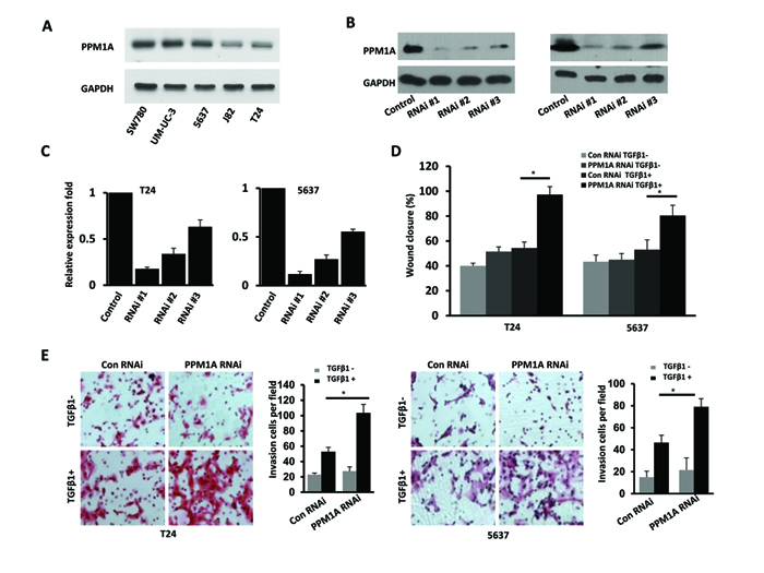Downregulation of PPM1A significantly promoted cellular invasion, which was dependent on TGF-β1, in vitro