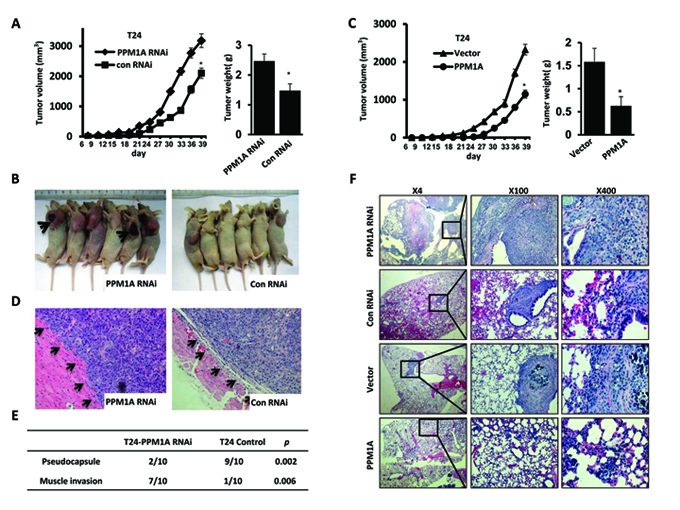 PPM1A suppressed tumor cell invasion and metastasis in BCa cells in vivo