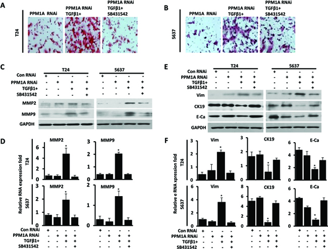 PPM1A inhibited BCa cells invasion and EMT, which was dependent on TGF-β/Smad signaling