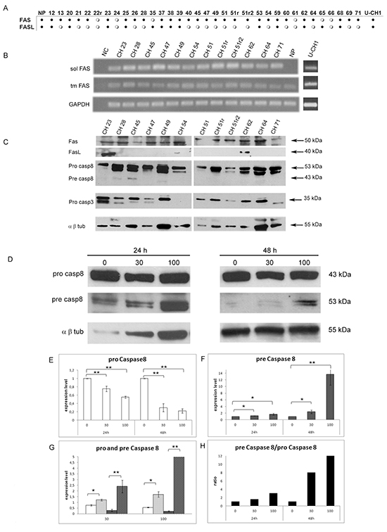 Expression analysis of FAS, FASL and effector Caspase 8 and 3 in a cohort of SBCs and U-CH1 cell line. (A)