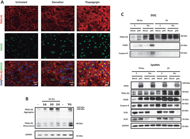 Metabolic stress induces TRAIL DISC formation at the plasma membrane in p95HER2/611CTF cells.