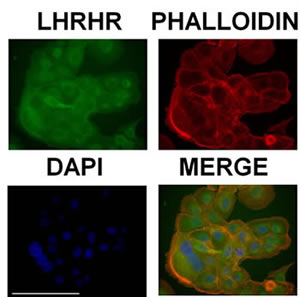 DU-145 cells express receptors of LHRH on the cell membrane.