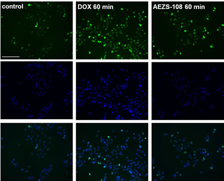 The phosphorylation of the DNA breakdown marker, γ-H2AX, is markedly stimulated by doxorubicin but less affected by AEZS-108 in short-term experiments.
