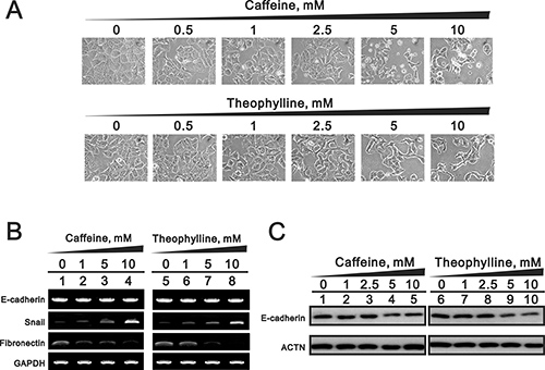 The EMT effects by theophylline and caffeine in MCF-7 cells.