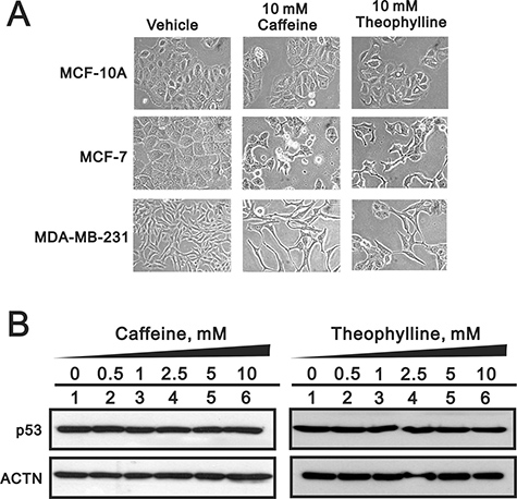 Theophylline had no effect on normal breast cells.