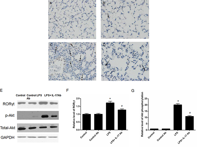 IL-17 blocking attenuated the expression of RORγt and activity of PI3K-Akt pathway.