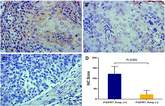 Fibroblast growth factor receptor 1 (FGFR1) expression in esophageal squamous cell carcinomas assessed by immunohistochemistry (magnification: ×200).