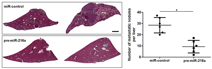 miR-216a suppresses liver metastasis of GC cells in mice.