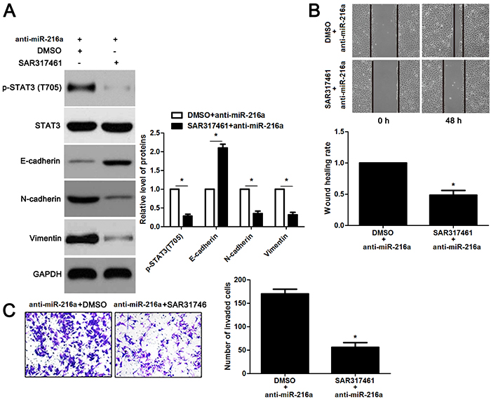The JAK2 inhibitor SAR317461 reverses the effects of miR-216a knockdown in GC cells.