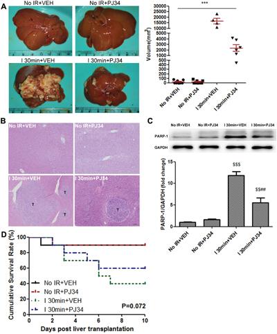 PARP-1 increased the risk of IR-induced HCC recurrence after rat liver transplantation.