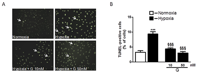Effect of G on hypoxia-induced cell apoptosis.