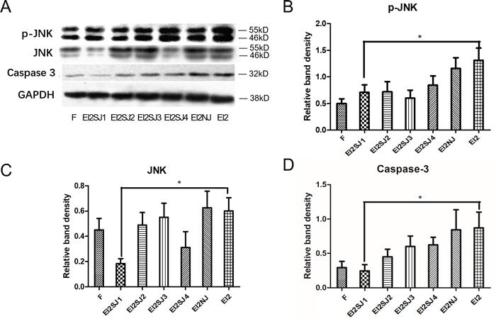 FNSCs transfection with siRNA-JNK (siRNA-JNK1, siRNA-JNK2, siRNA-JNK3, siRNA-JNK4).
