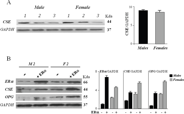 CSE protein expression in hOBs from male (M) and female (F) donors.