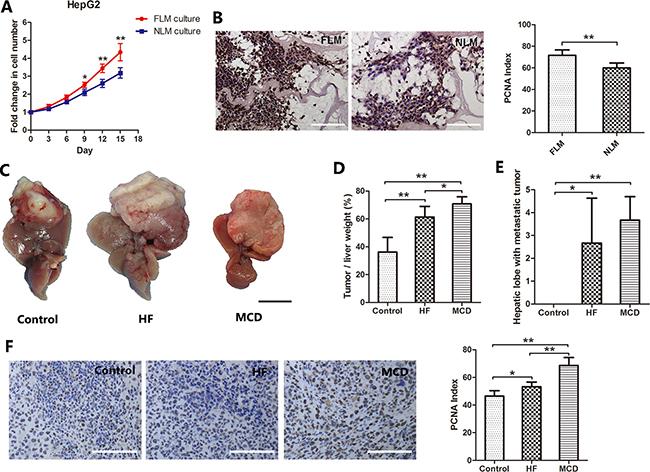 Nonalcoholic fatty liver promotes HCC cells proliferation.