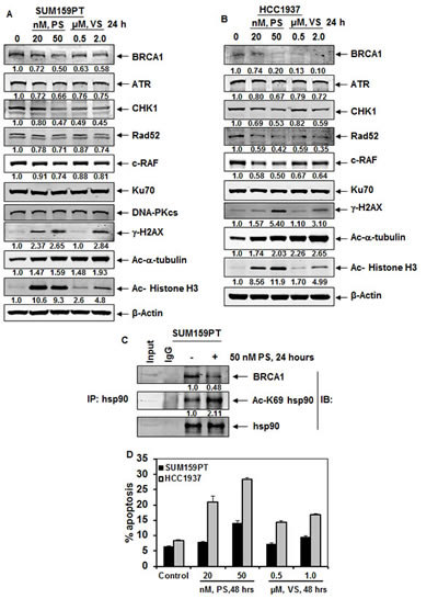 Treatment with HDAC inhibitors disrupt chaperone association of hsp90 with BRCA1, deplete BRCA1, ATR and CHK1 expression levels, as well as induce DNA damage and apoptosis of breast cancer cells.