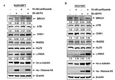 Treatment with panobinostat induces proteasomal degradation of BRCA1, ATR and CHK1 in breast cancer cells.
