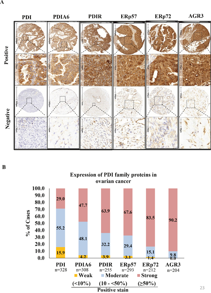 Immunohistochemical expression patterns of PDIs in ovarian cancer tissue samples.
