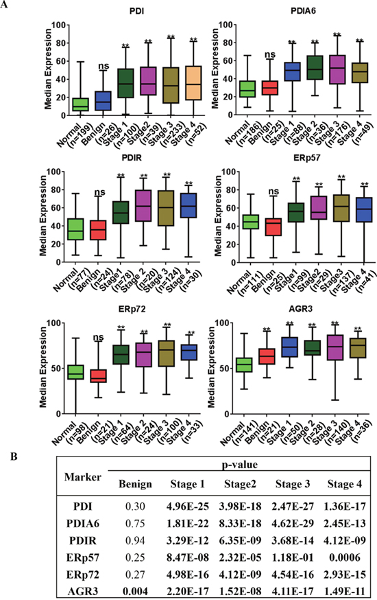PDI family proteins are overexpressed in tumor tissue collected from tumors of different stages.