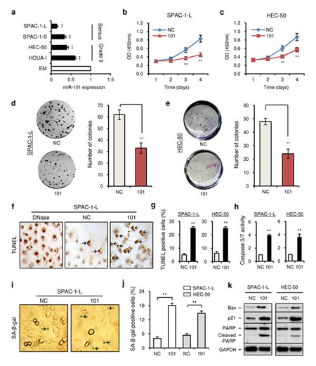 MiR-101 is downregulated in aggressive EC cell lines and modulates cell proliferation.