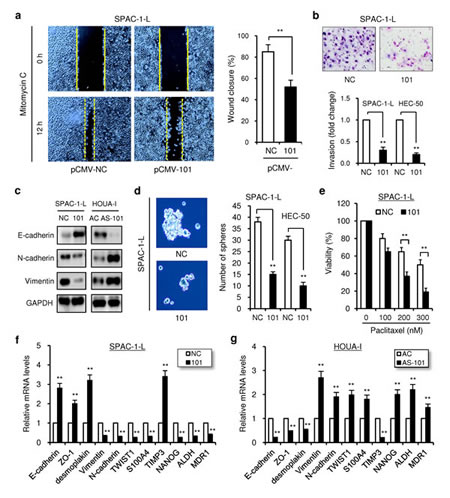 Overexpression of miR-101 inhibits aggressive EC cell migration, invasion and EMT.