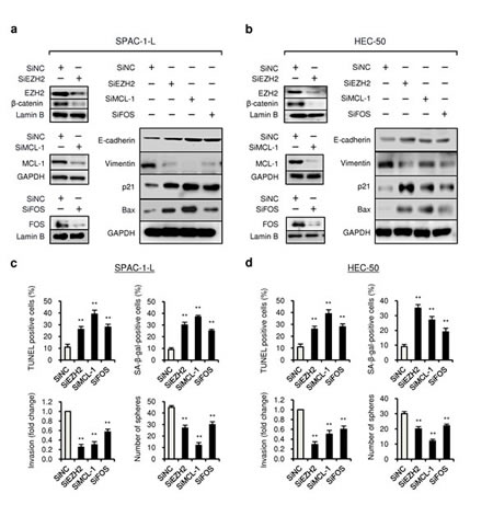 Knockdown of EZH2, MCL-1 and FOS expression reduce proliferation, invasion and CSC-like phenotypes of aggressive EC cells.