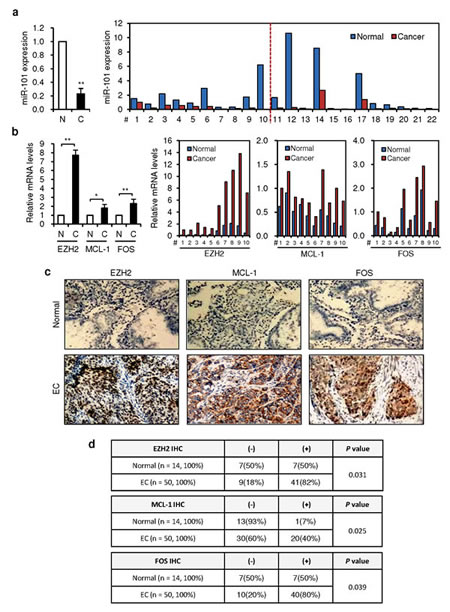 An inverse correlation between decreased miR-101 expression and elevated expressions of EZH2, MCL-1 and FOS in ECs.