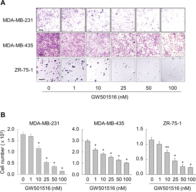 Activating PPARδ inhibits migration of MDA-MB-231, MDA-MB-435, and ZR-75-1 cells.