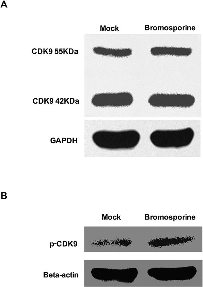 Bromosporine increases CDK9 T-loop phosphorylation in Jurkat C11 cells.