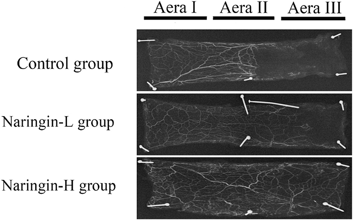 Flap angiography presenting flaps from the three groups.