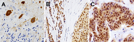 Expression and cellular localization of PCP4/PEP19 in human clinical cases of breast cancer tissues.
