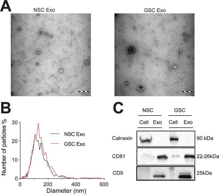 Characterization of exosomes isolated from neural and brain tumor stem cells.