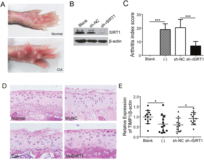 Depletion of SIRT1 significantly relieved cartilage erosion in CIA rats.