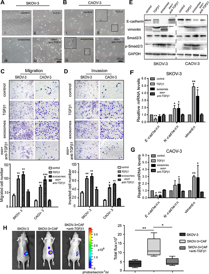 Fibroblast-derived TGFβ1 induces EMT in ovarian cancer cells.