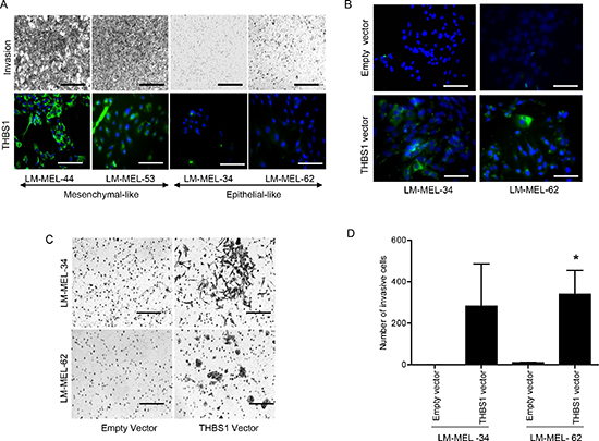 THBS1 expression induces melanoma cell invasion.