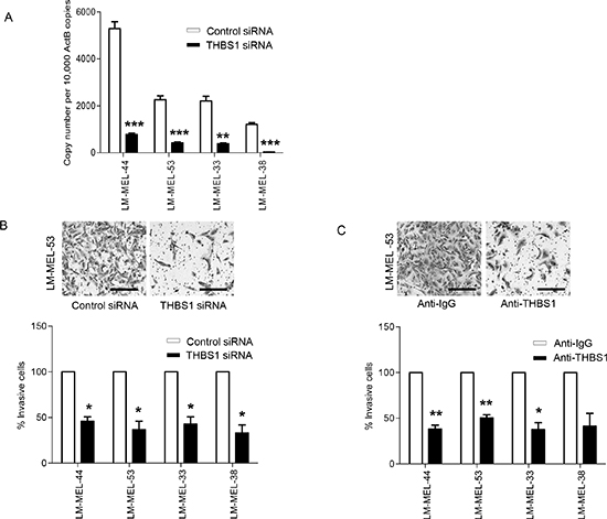 Targeting THBS1 results in loss of invasive potential of melanoma cells in vitro.