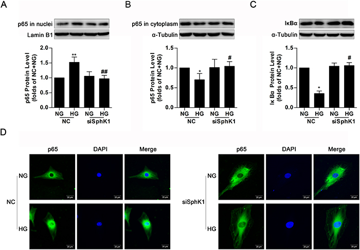 Knockdown of SphK1 decreased nuclear translocation of NF-κB in high glucose-induced GMCs.