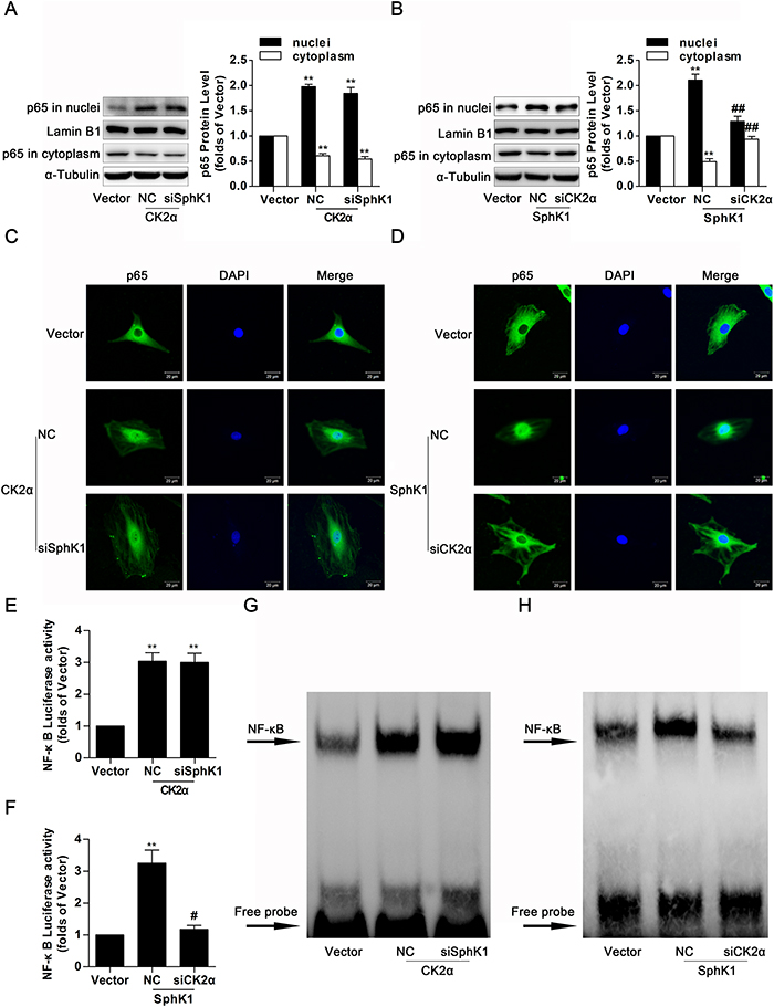 Knockdown of CK2α decreased nuclear translocation, transcriptional activity and DNA binding activity of NF-κB in SphK1-overexpressed GMCs.