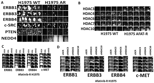 HDAC inhibitors reduce the expression of receptor tyrosine kinases in afatinib resistant NSCLC cells that correlates with inhibition of HDACs1/2/3, HDAC6 and HDAC10.